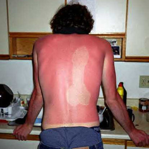 """Sucky"" Sunburn"